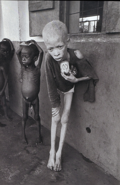 An albino boy during Biafra famine. Photograph by Don McCullin.