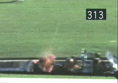 Frame 313 of Zapruder Film. This frame shows the President's head exploding after being hit by the bullet. Videographed by Abraham Zapruder.